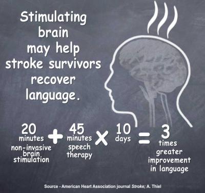 Stimulating Brain May Help Stroke Survivors Recover Language