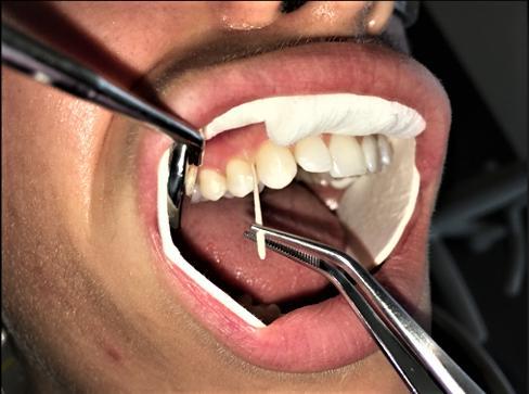 Gingivitis study