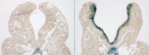 Mothers' Diabetes Induces Premature Aging of Neural Tissue In Mice