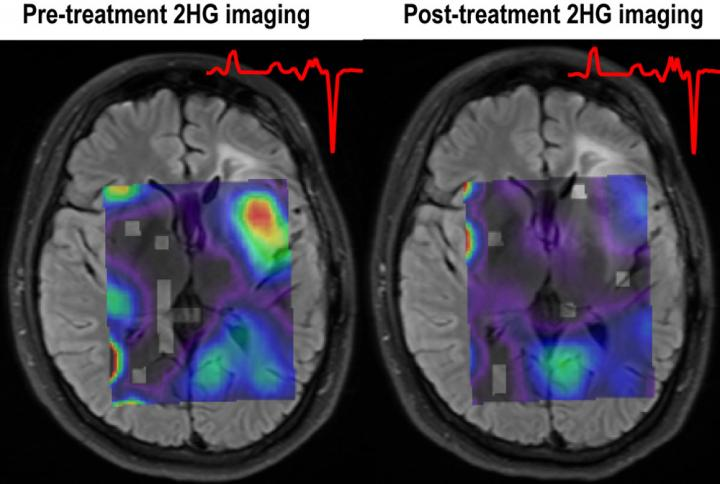 Imaging Reveals Response to Targeted Glioma Treatment