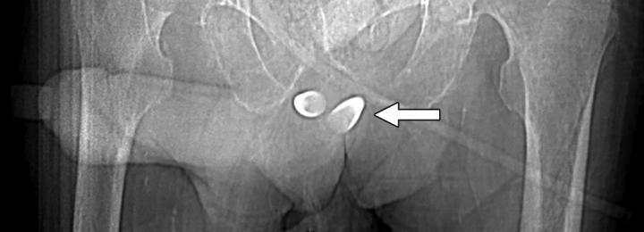 Erectile Prosthesis Variants