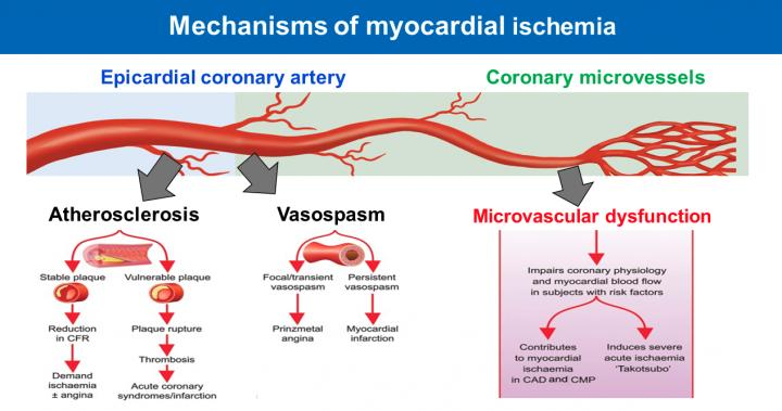 Microvascular angina is important global health problem