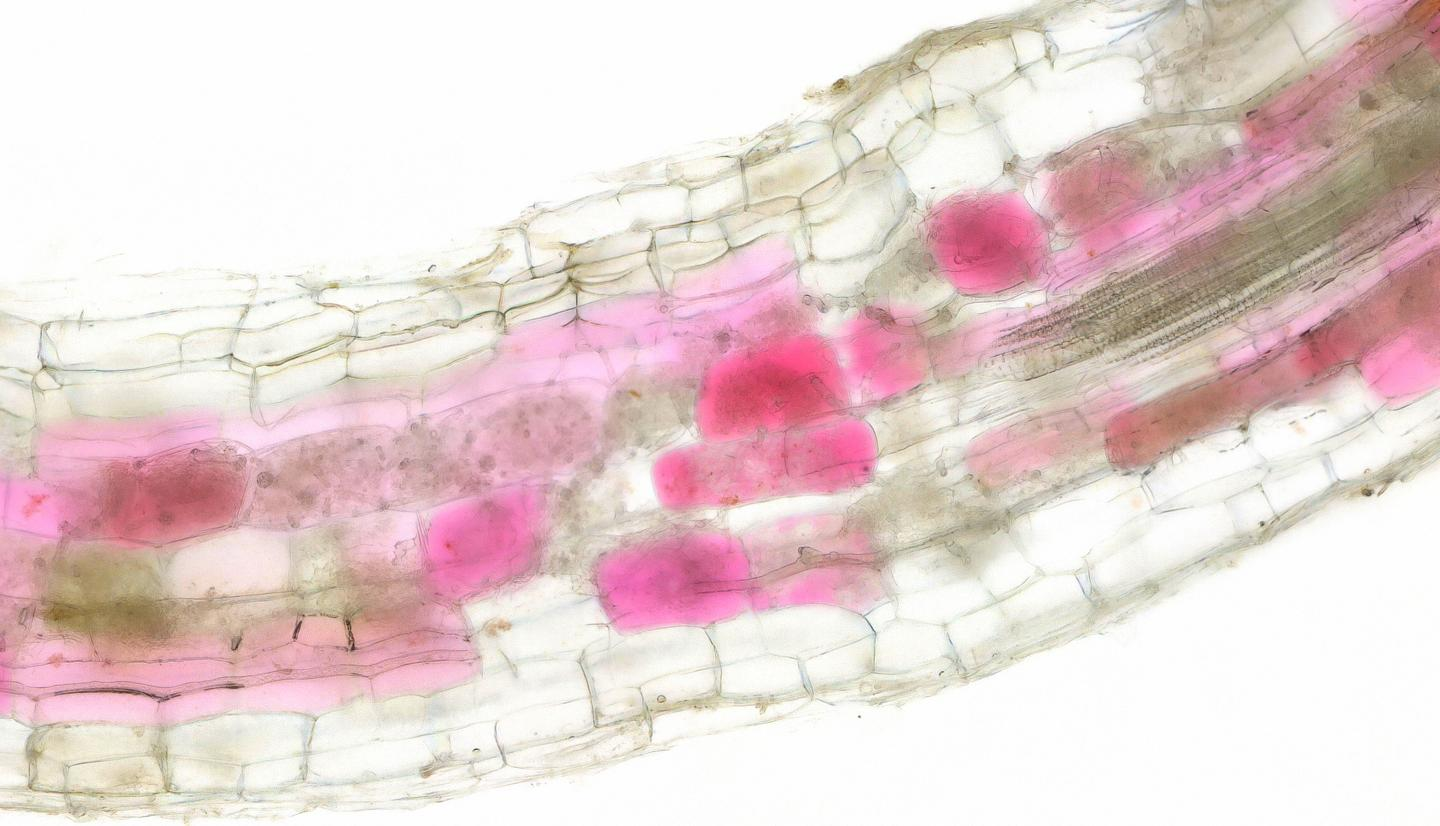 Cells of roots colonised by fungi turn red (2)