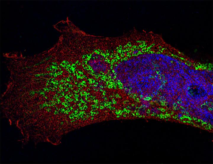 Flu-infected Cell