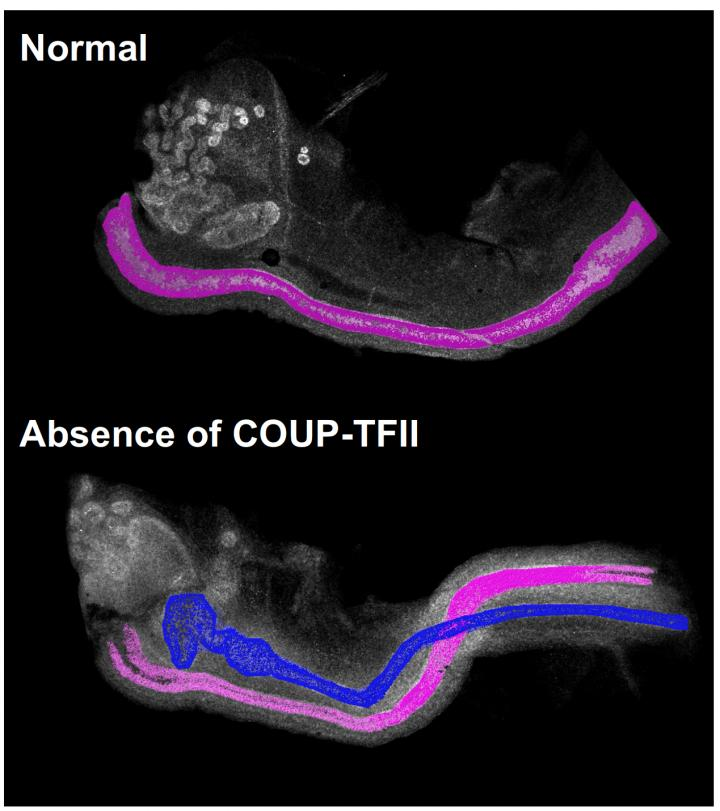 Image of Female Mouse Embryos With and Without COUP-TFII