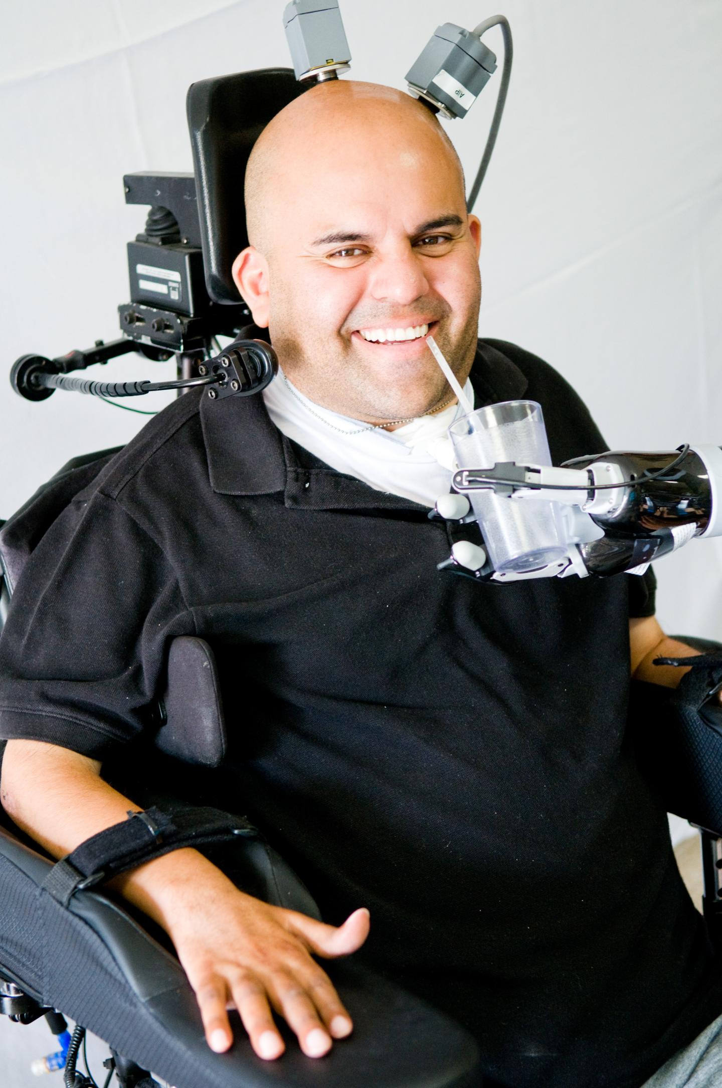Neuroprosthetic allows patient to give himself a drink for the first time in 10 years.