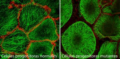 Mutant Epidermal Stem Cells Lose the Connections to Their Neighbors