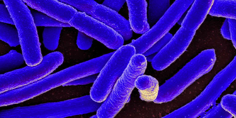 <I>E. coli</I> SEM