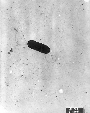 <em>Listeria monocytogenes</em>