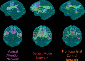 White Matter Integrity Disrupted in People with Alzheimer's Gene Mutation
