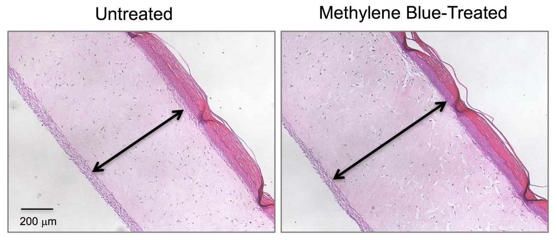 Methylene Blue Thickens Dermis Layer in Model Skin