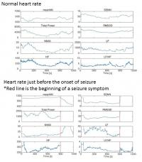 Traditional Analysis of Heart Rate Variability Using ECG