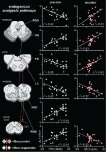 Brainstem Pathway Modulates Pain in Placebo Effect