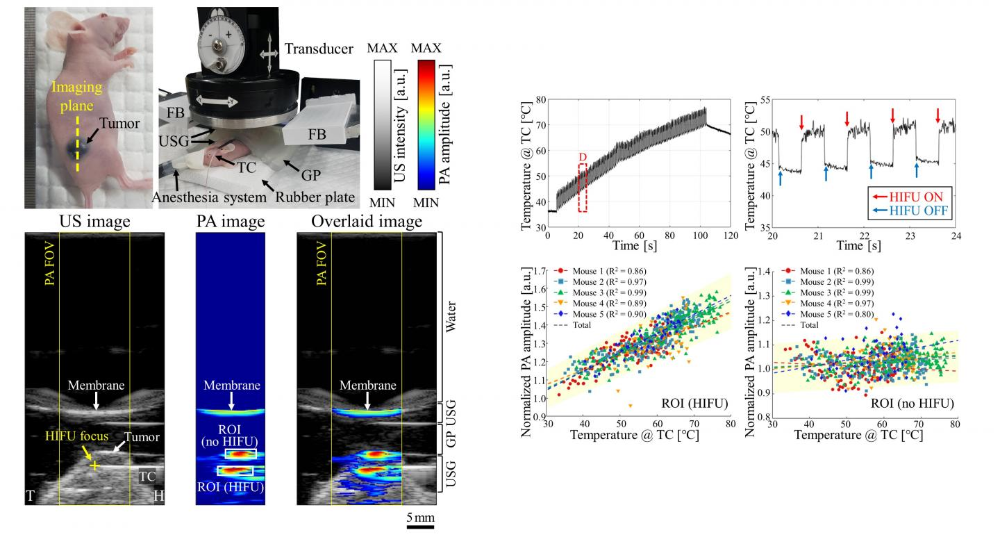 Real-Time Ultrasound and Photoacoustic Thermometry Images