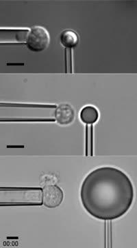 Video of white blood cell protrusion