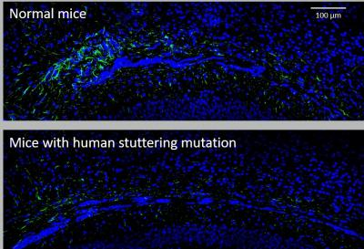 Astrocyte Loss in Mice with Human Stuttering Gene