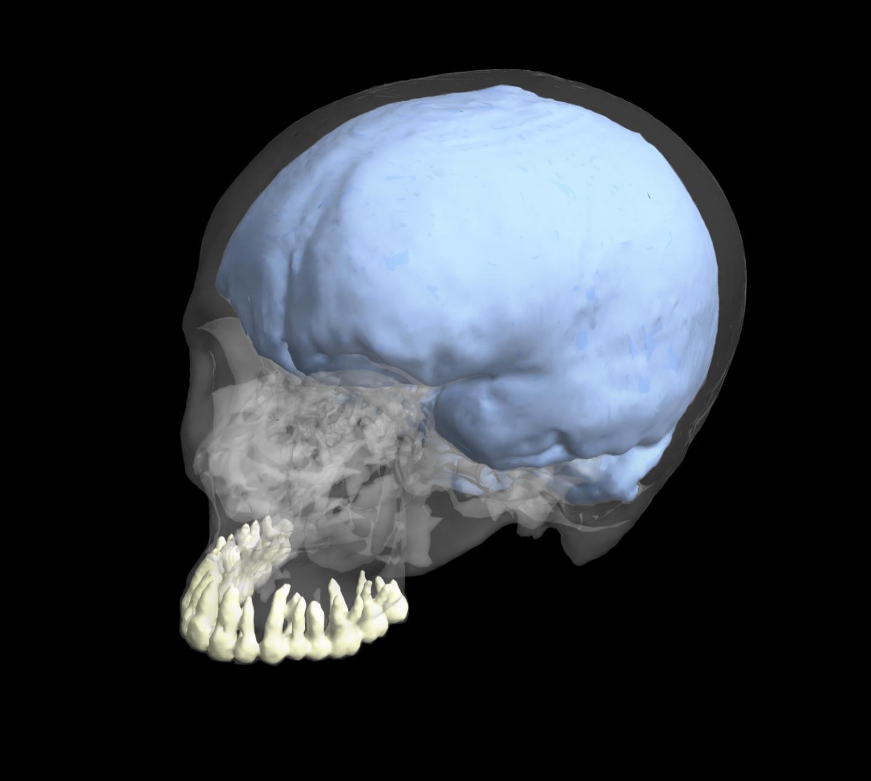 Human Cranium