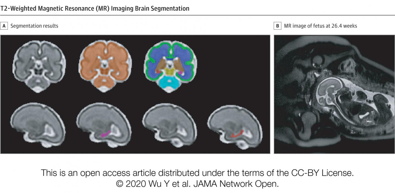 T2-Weighted Magnetic Resonance (MR) Imaging Brain Segmentation
