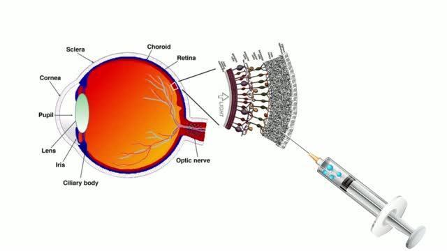 Artificial Liquid Retina