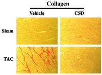 Caveolin-1 Saffolding Domain (CSD) Peptide Reverses Collagen Accumulation in Pressure Overloaded (Ta
