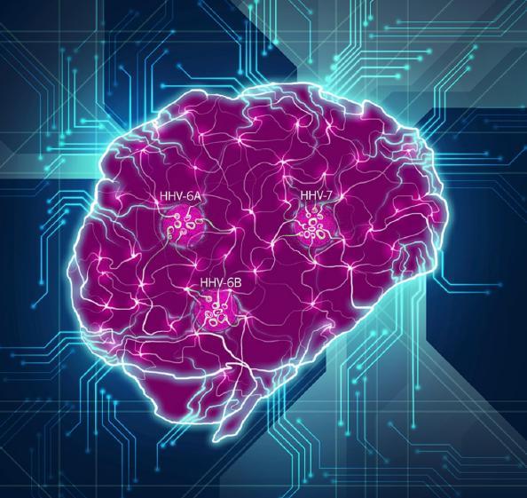 Brain Disrupted by Herpesviruses