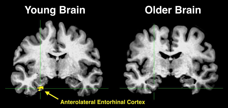 Young Brain vs. Older Brain