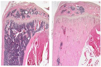 WNT7B Stimulates New Bone