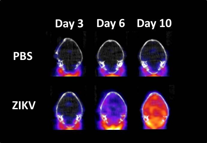 In Vivo PET Imaging Can Detect ZIKV-related Neuroinflammation as Early as Day 3 Post-infection