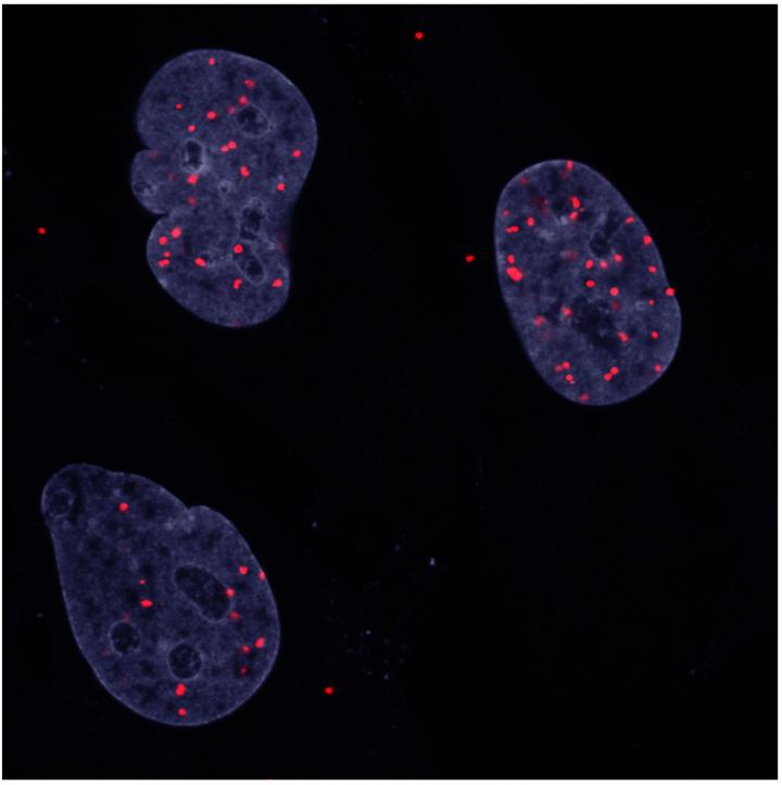 Unhibited Cancer Cells
