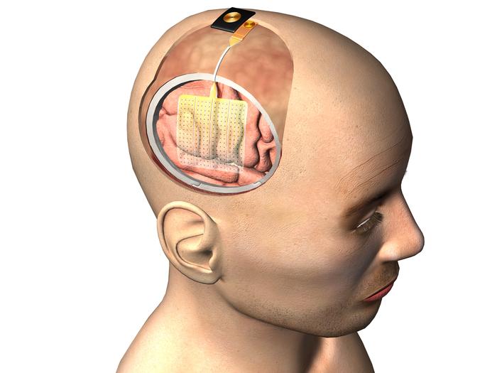 UC San Diego leads a $12.25M grant to improve epilepsy treatment