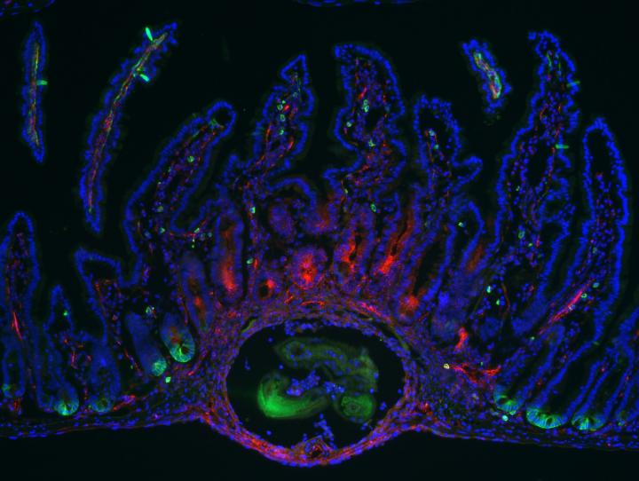 Lgr5 (in Green) Marks Adult Intestinal Stem Cells (1 of 2)