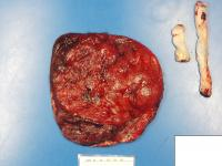 Maternal Side of a COVID-Impacted Placenta