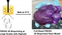 Method for 3D Bioprinting a Heart
