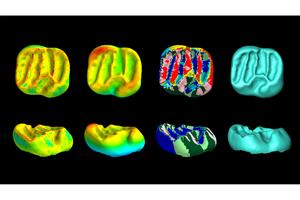 Dental CT scans