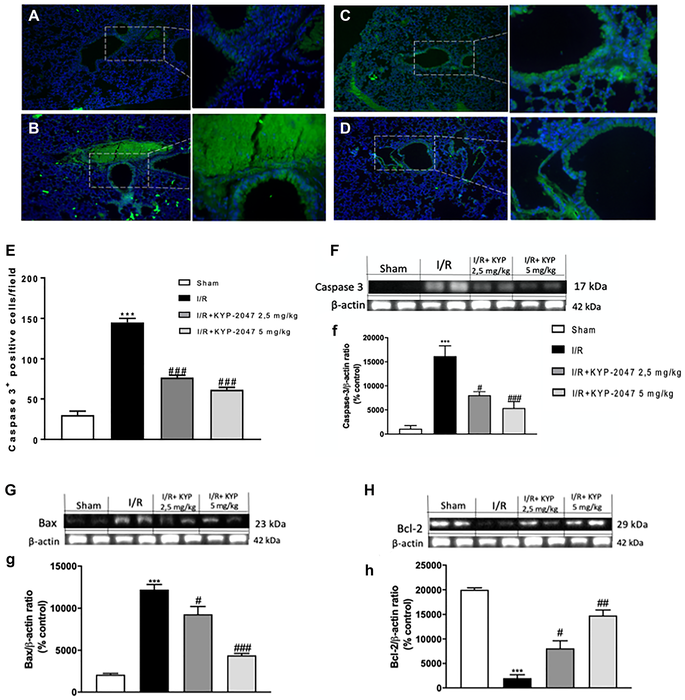 Role of KYP-2047 treatment on apoptosis Immunofluorescence staining for Caspase-3 was performed to examine apoptosis in the lungs