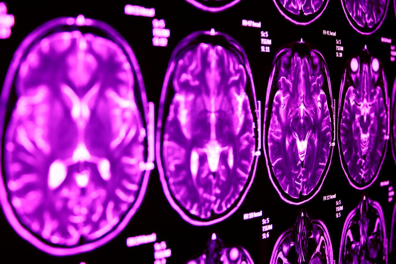 MRI Scan of the Brain