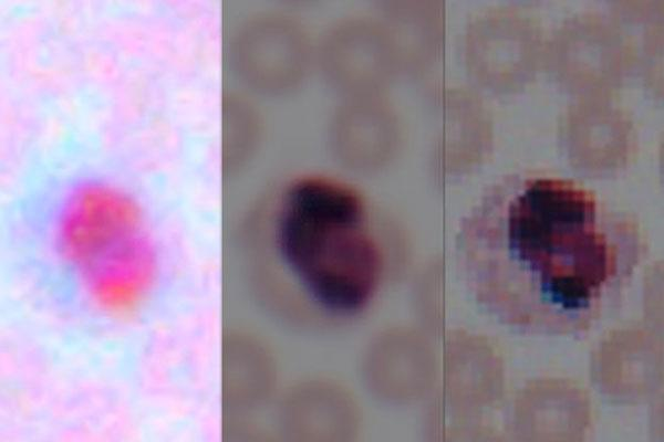 Deep Learning Transforms Smartphones into Microscopes