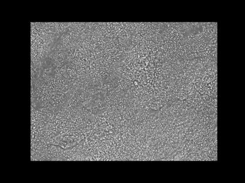 Salk Institute - Jones Lab - Cardiomyocyte Video
