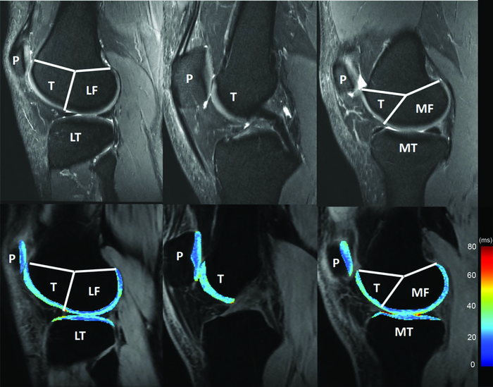 RSNA Publishes New QIBA Profile for Knee Cartilage MRI