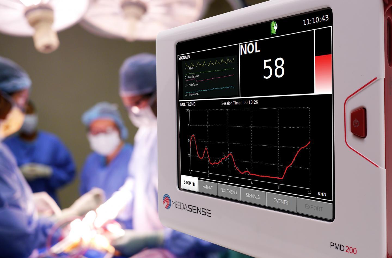 NOL pain monitoring