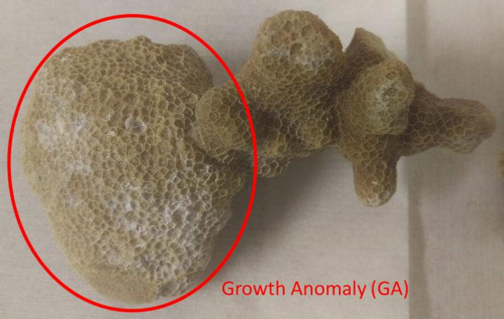 Growth Anomaly