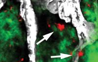 Sleeping Cancer Cells in Bone