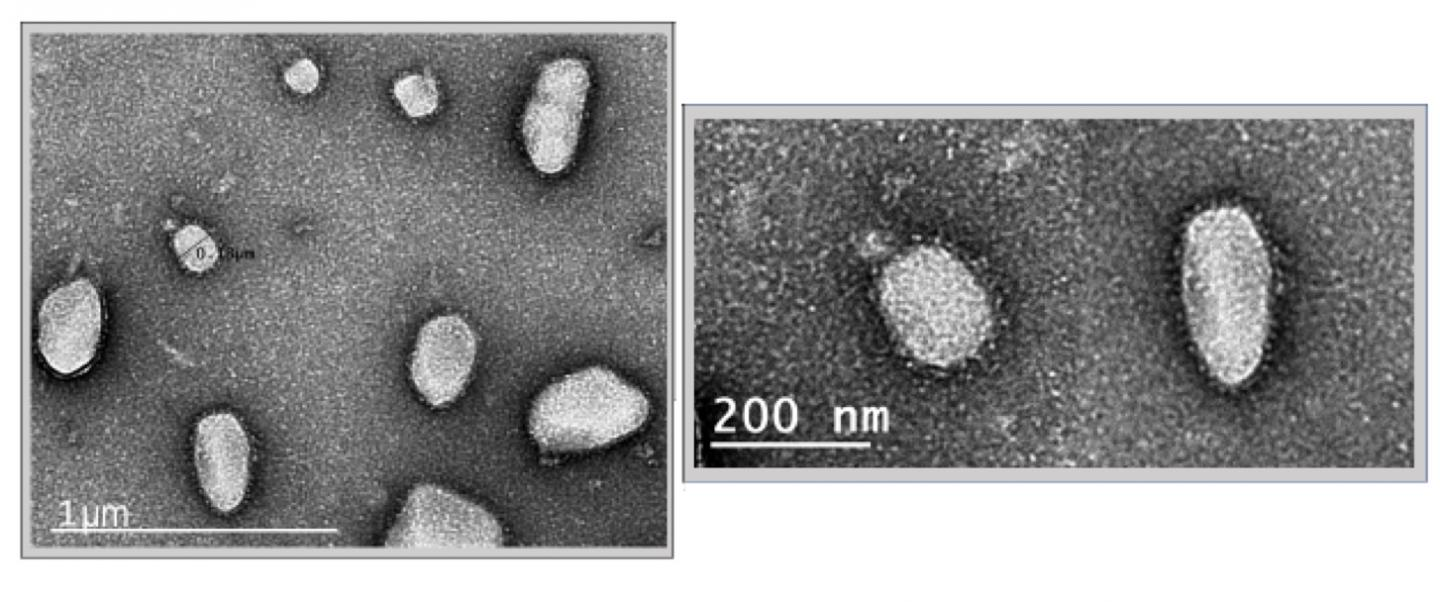 Electron Microscopy (EM) Images of SARS-CoV-2 Virus-like Particles