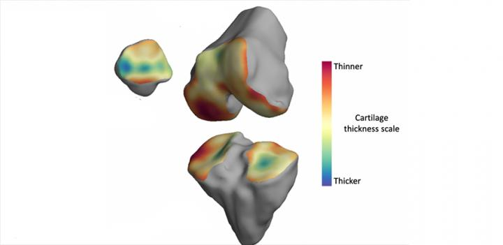 3D Model of Bone Created from MRI Scans