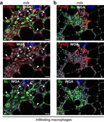 PMO Penetrates Infiltrating Inflammatory Cells Targeting Regions of Active Muscle Regeneration