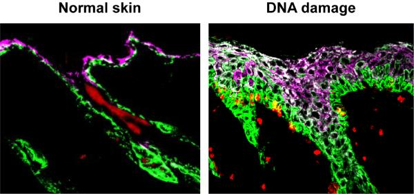 Skin Cells; Normal and DNA Damage