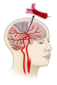 Illustration of Ischemic Stroke