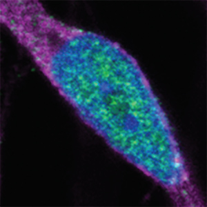 Nuclear accumulation of CHMP7 in ALS