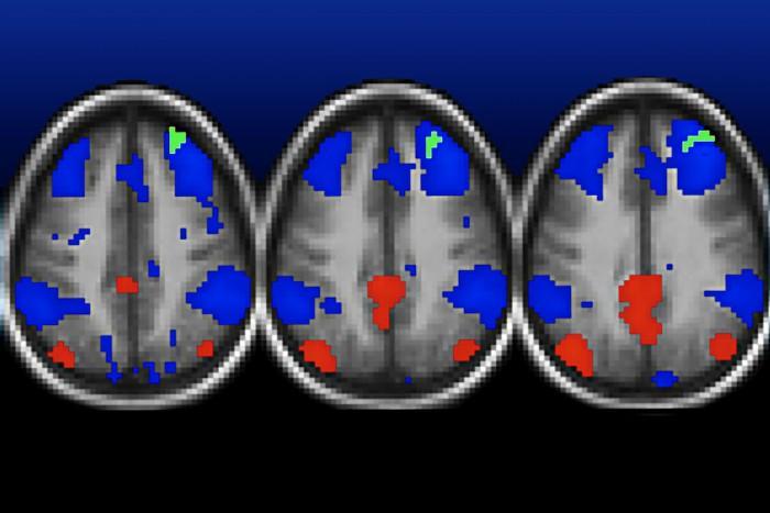 Functional MRI Scans