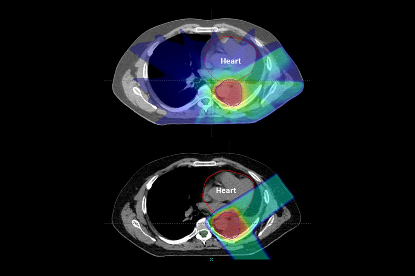 Proton Therapy for Cancer Lowers Risk of Side Effects